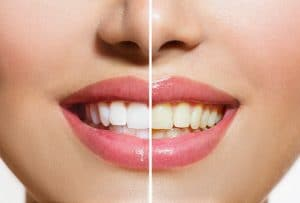 Dealing With Dental Discoloration