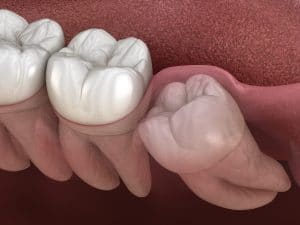wisdom tooth in need of extraction
