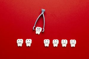 kansas city tooth extraction