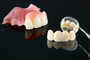 kansas city dental prosthetics