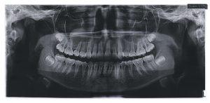 kansas city wisdom teeth