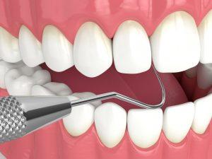 kansas city dental cleaning